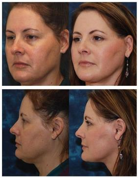 Facial Exercises Before and After