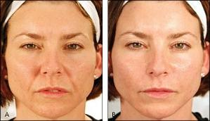 Facial Exercises Before and After 3