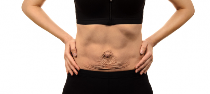7 Skin Tightening Tips After Weight Loss [Easy!]